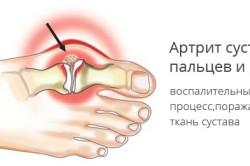 Изображение - Отек сустава ступни artrit-250x166