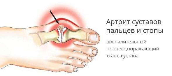 Болезни суставов стопы: лечение