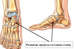 Схема артроза стопы