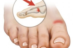 Артроз сустава стопы как причина боли