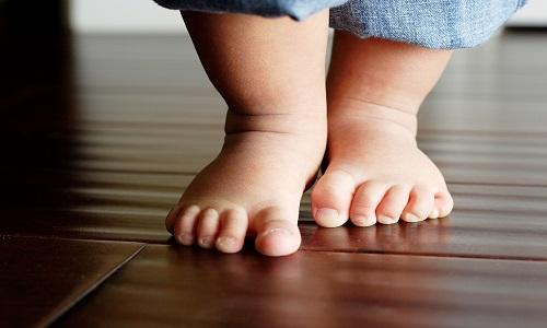 Проблема плосковальгусной деформации стопы