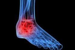 Боль в суставе - признак заболевания