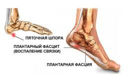 Фасцит как патологический процесс при периартрите стопы