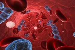Стрептококковая инфекция как причина возникновения некротического фасциита