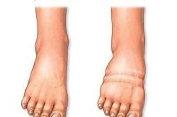 Опухоль - причина боли костей стопы