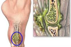 Остеомиелит - причина боли костей стопы