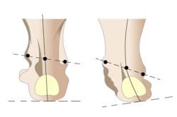 Схема плосковальгусной деформации стопы