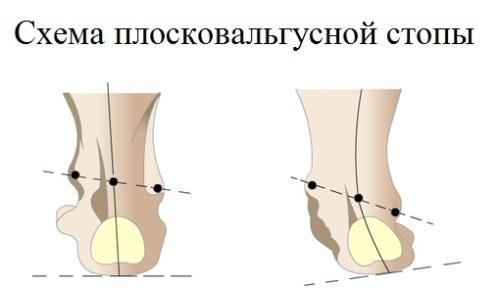 Схема плосковальгусной стопы