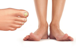 Грибок - причина вросшего ногтя