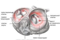 Инфекционный эндокардит - одна из причин сыпи на стопе
