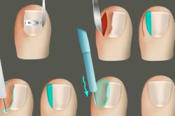 Процесс лечения вросшего ногтя