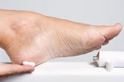 Мази для лечения сыпи на стопе