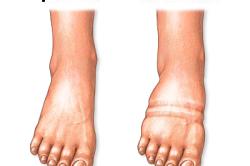 Отек при переломе плюсневых костей стопы