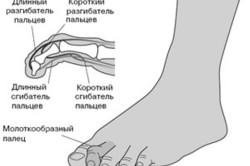 Схема молоткообразной деформации пальцев стопы