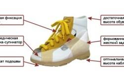 Требования к обуви при болях в стопе у ребенка