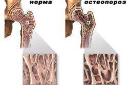 Остеопороз - причина боли костей стопы