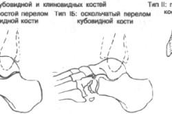 Переломы клиновидной и кубовидной костей