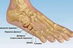 Переломы плюсневой кости