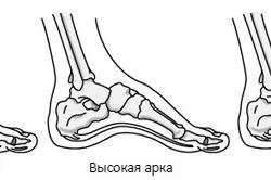 Классификация плоскостопий
