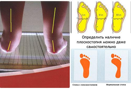 Определение плоскостопия