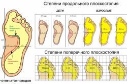 Плоскостопие - причина пяточных шпор