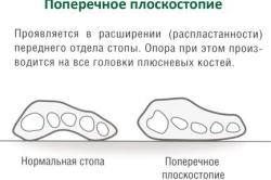 Схема поперечного плоскостопия