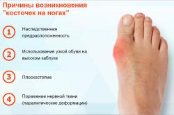 Причины бурсита большого пальца стопы