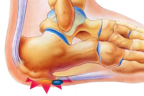 Лечение экзостоза пяточной кости