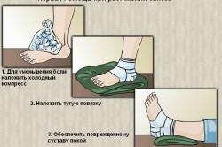первая помощь при повреждении стопы