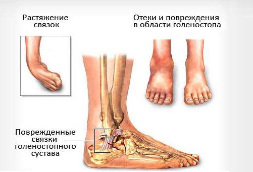 Растяжение связок стопы у маленьких детей: лечение