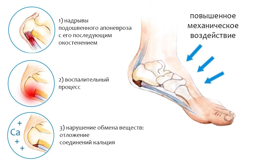 Экспериментальная фабрика спортивной обуви