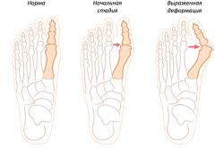 Стадии образования шишки на ногах