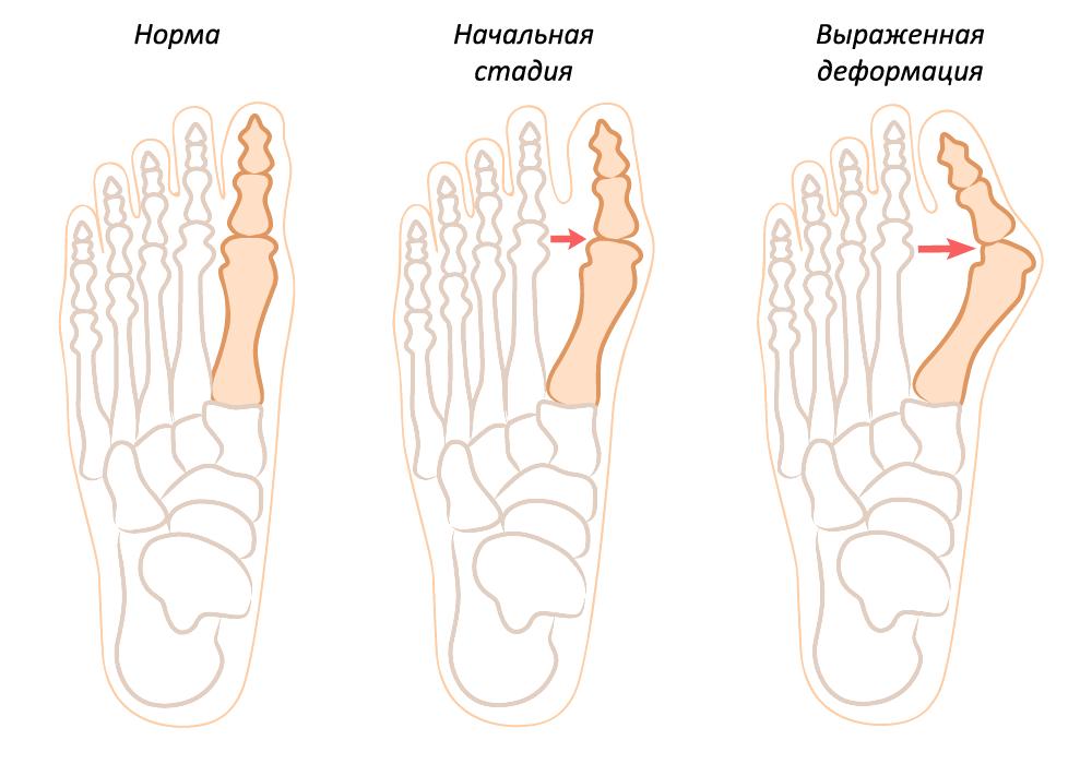 Косточка на ноге лечение народными средствами