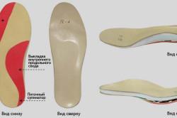 Ортопедическая стелька при шишках на ступнях