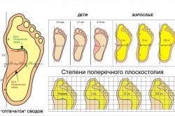 Плоскостопие - одна из причин развития эквинусной деформации стопы