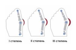 Вальгусная деформация стопы - следствие перелома пятки