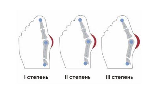 Артроз стопы 2 степени лечение