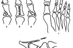 Варианты переломов фаланг стопы