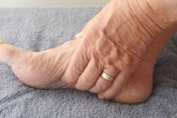 Ноющая боль в стопе при периартрите