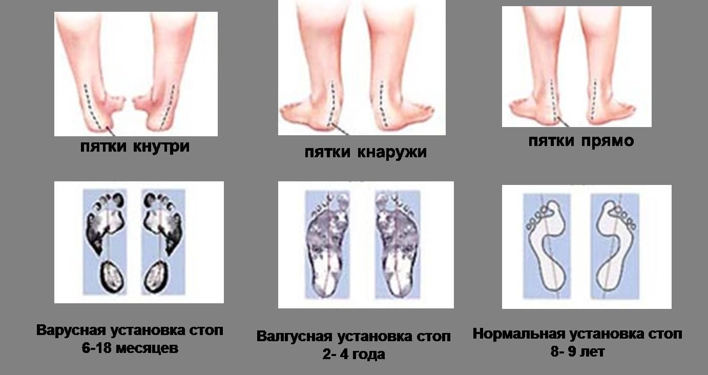 плоскостопие у детей 7 лет массаж