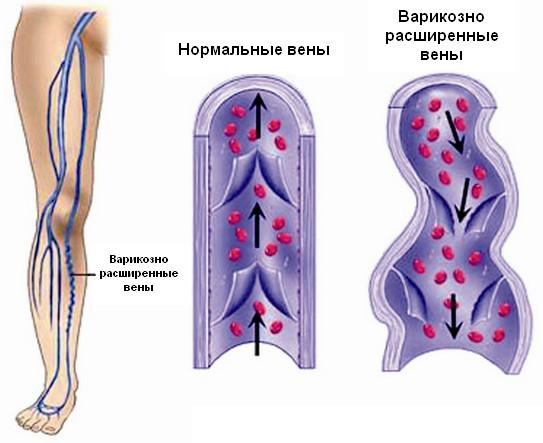 Компрессионные колготки при тромбофлебите