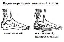 Виды переломов пяточной кости