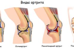 Различные виды артрита