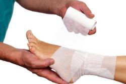 Обращение к врачу при вывихе стопы
