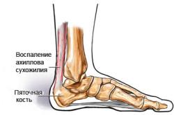 Сухожилия стопы