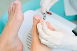 Лечение вросшего ногтя хирургическим путем